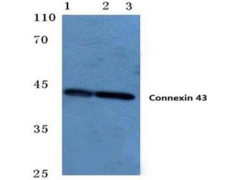 Western Blotting (WB) image for anti-Gap Junction Protein, alpha 1, 43kDa (GJA1) antibody (ABIN451491)