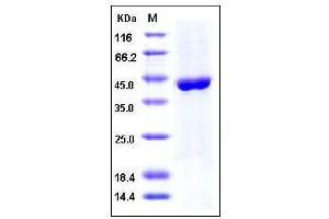 Image no. 1 for Aminoacylase 1 (ACY1) (AA 1-408), (full length) protein (His tag) (ABIN2003031)