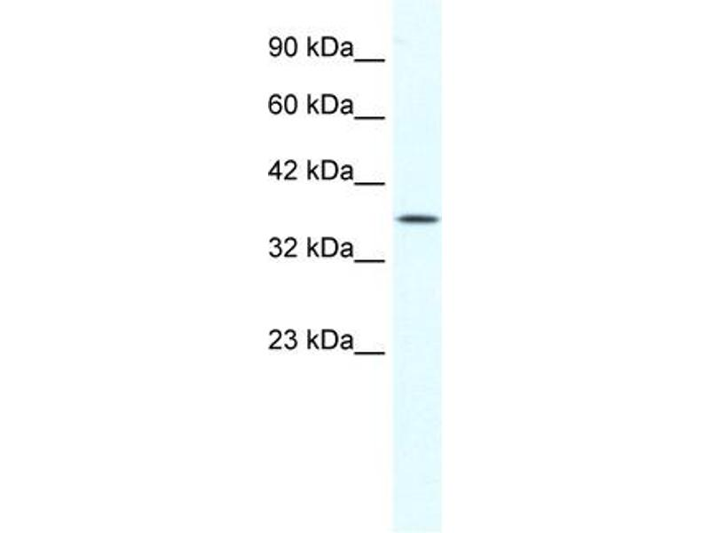 Western Blotting (WB) image for anti-Y Box Binding Protein 2 (YBX2) (Middle Region) antibody (ABIN2775800)