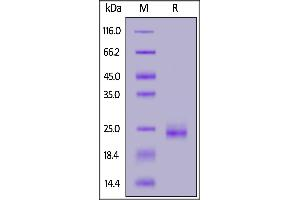 Image no. 1 for GTPase Kras (KRAS) (AA 1-169) protein (His tag) (ABIN7013192)