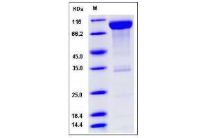 Image no. 1 for CD6 (CD6) (AA 1-243), (Extracellular Domain) (Active) protein (Fc Tag) (ABIN2008209)
