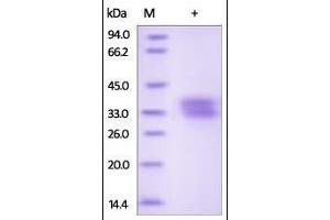 Image no. 1 for Ephrin B1 (EFNB1) (AA 28-232) protein (His tag) (ABIN2180995)