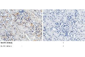Image no. 1 for anti-Bone Marrow Stromal Cell Antigen 1 (BST1) (AA 1-293) antibody (ABIN2001721)