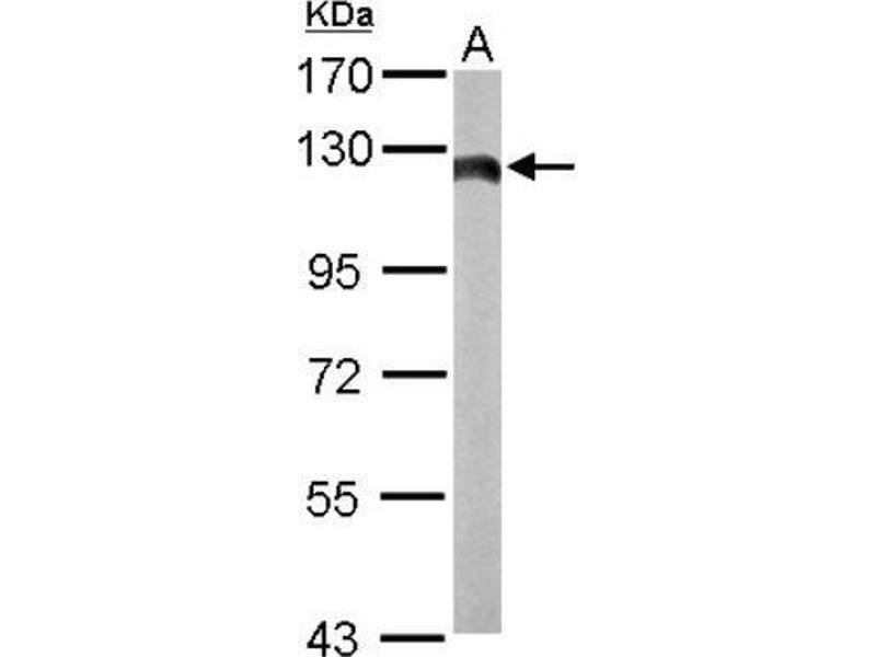 Western Blotting (WB) image for anti-Hexokinase 2 antibody (HK2) (Center) (ABIN4317176)