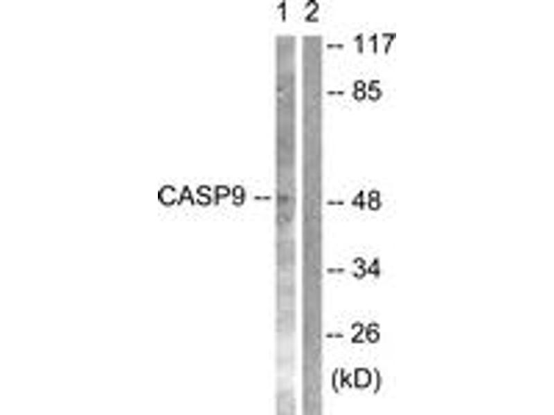 Western Blotting (WB) image for anti-Caspase 9 antibody (Caspase 9, Apoptosis-Related Cysteine Peptidase) (ABIN1532234)