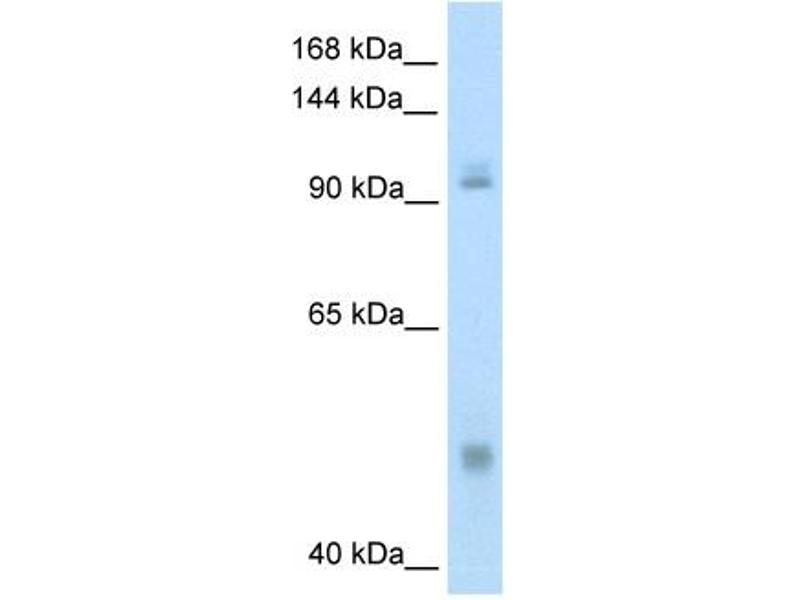 Western Blotting (WB) image for anti-Nuclear Factor of kappa Light Polypeptide Gene Enhancer in B-Cells 1 (NFKB1) (N-Term) antibody (ABIN2780565)