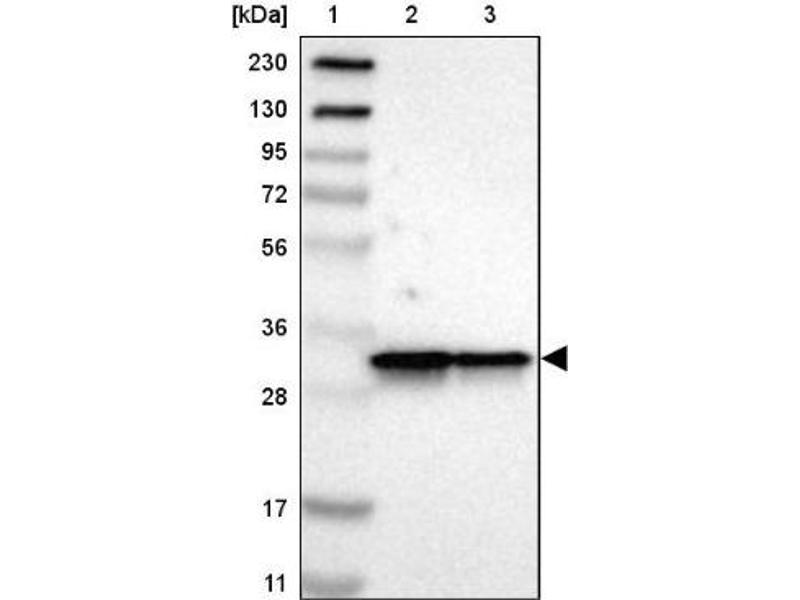 Western Blotting (WB) image for anti-ARPC2 antibody (Actin Related Protein 2/3 Complex, Subunit 2, 34kDa) (ABIN4281691)