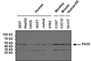 Western Blotting (WB) image for anti-Paired Box 6 (PAX6) antibody (ABIN268519)