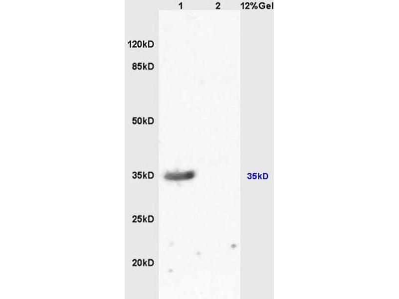SDS-PAGE (SDS) image for anti-Melanocortin 1 Receptor (MC1R) antibody (ABIN686287)