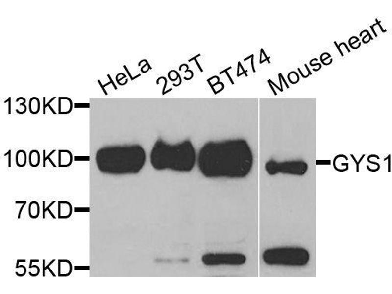 Western Blotting (WB) image for anti-Glycogen Synthase 1 (Muscle) (GYS1) antibody (ABIN3016178)