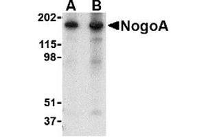 Image no. 1 for anti-Reticulon 4 (RTN4) (N-Term) antibody (ABIN1031486)
