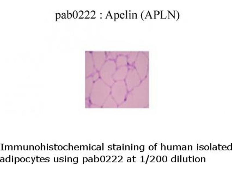image for anti-Apelin (APLN) (C-Term) antibody (ABIN347115)