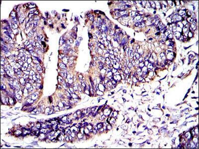 Immunohistochemistry (IHC) image for anti-Crk antibody (V-Crk Sarcoma Virus CT10 Oncogene Homolog (Avian)) (ABIN969062)