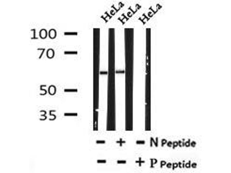 Image no. 1 for anti-Disabled Homolog 1 (Drosophila) (DAB1) (pTyr198) antibody (ABIN6269725)