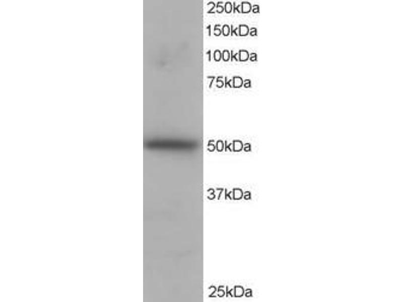 Western Blotting (WB) image for anti-Protein Kinase C and Casein Kinase Substrate in Neurons 3 (PACSIN3) (N-Term) antibody (ABIN257701)