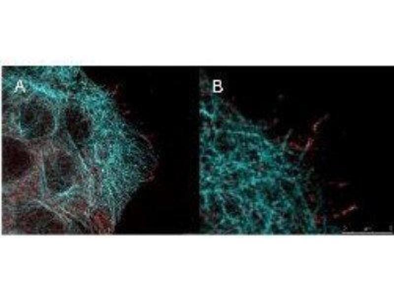 Immunofluorescence (IF) image for anti-V-Akt Murine Thymoma Viral Oncogene Homolog 1 (AKT1) (pSer473) antibody (ABIN4278999)