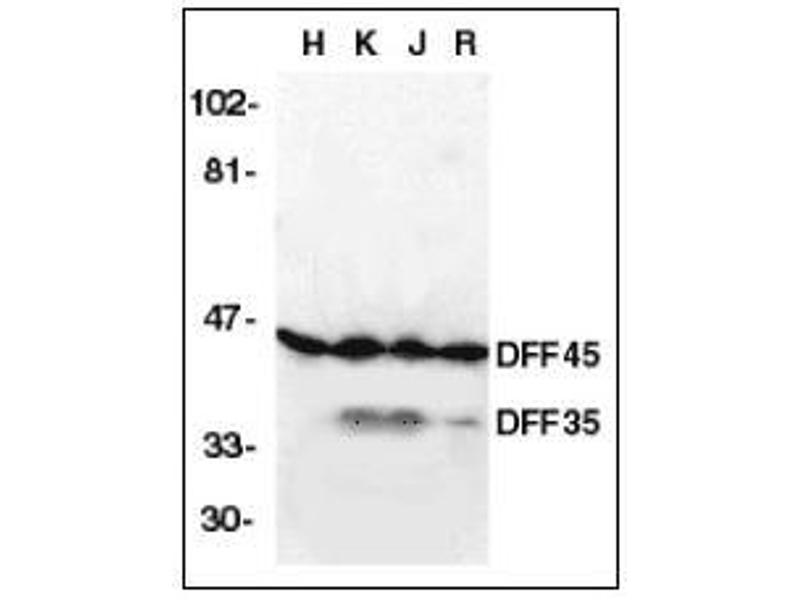 Western Blotting (WB) image for anti-DFFA antibody (DNA Fragmentation Factor, 45kDa, alpha Polypeptide) (AA 2-21) (ABIN615234)