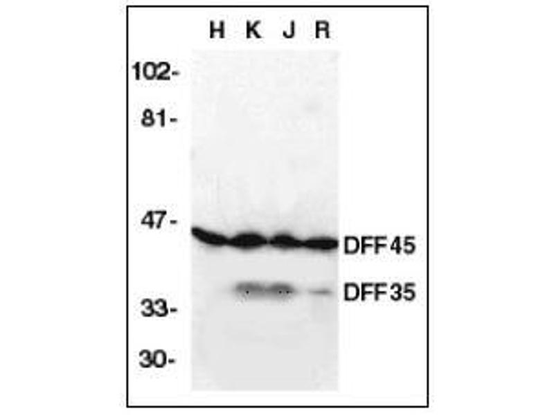 Western Blotting (WB) image for anti-DNA Fragmentation Factor, 45kDa, alpha Polypeptide (DFFA) (AA 2-21) antibody (ABIN615234)