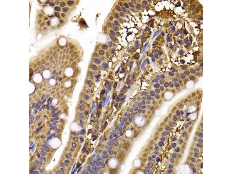 Immunohistochemistry (IHC) image for anti-Cytoplasmic Linker Associated Protein 1 (CLASP1) antibody (ABIN6570906)