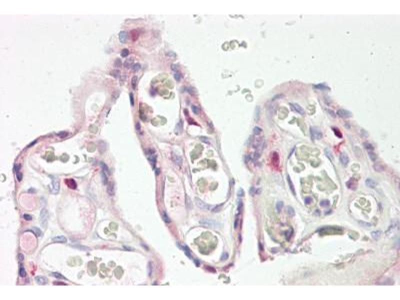 image for anti-Keratocan (KERA) (AA 196-245) antibody (ABIN1493172)