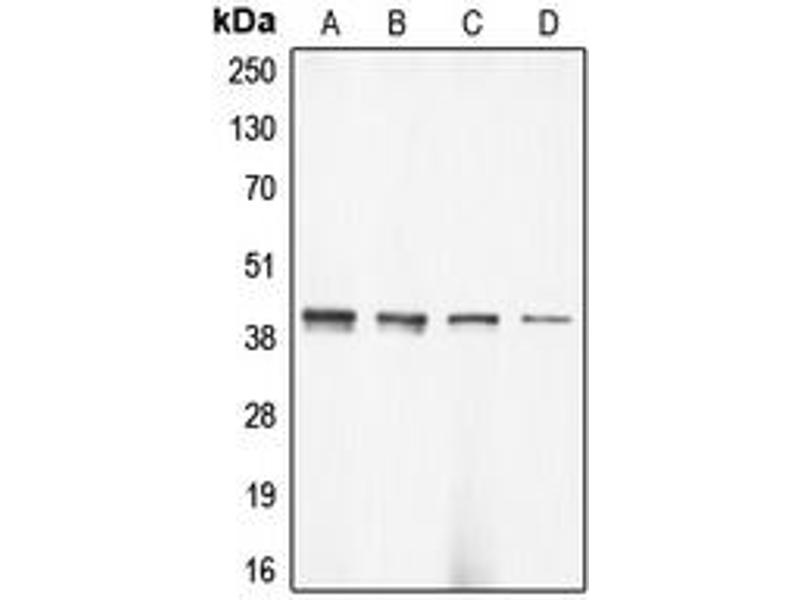 Image no. 1 for anti-Actin, gamma 2, Smooth Muscle, Enteric (ACTG2) (N-Term) antibody (ABIN2707325)