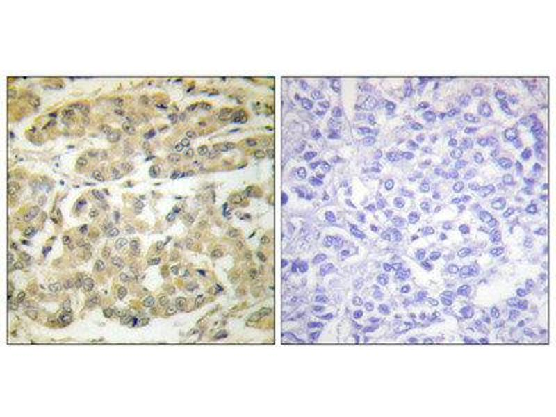 Immunohistochemistry (IHC) image for anti-tyrosine 3-Monooxygenase/tryptophan 5-Monooxygenase Activation Protein, zeta Polypeptide (YWHAZ) (pSer58) antibody (ABIN1847200)