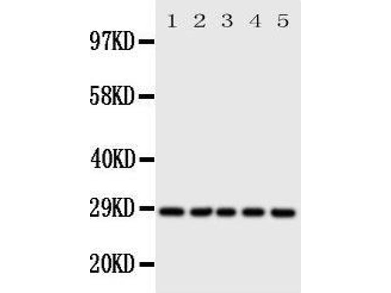 Western Blotting (WB) image for anti-Stratifin Antikörper (SFN) (AA 140-156) (ABIN3044182)