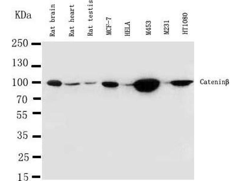 Western Blotting (WB) image for anti-CTNNB1 antibody (Catenin (Cadherin-Associated Protein), beta 1, 88kDa) (AA 1-19) (ABIN3044344)