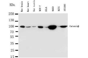 Western Blotting (WB) image for anti-Catenin (Cadherin-Associated Protein), beta 1, 88kDa (CTNNB1) (AA 764-781), (C-Term) antibody (ABIN3044344)