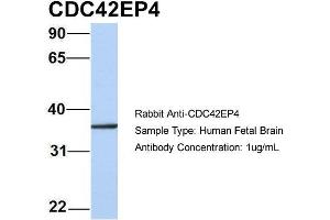Image no. 2 for anti-CDC42 Effector Protein (Rho GTPase Binding) 4 (CDC42EP4) (N-Term) antibody (ABIN2785914)