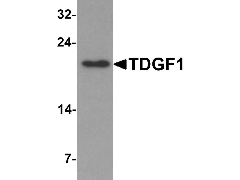 Image no. 2 for anti-Teratocarcinoma-Derived Growth Factor 1 (TDGF1) (N-Term) antibody (ABIN1077401)