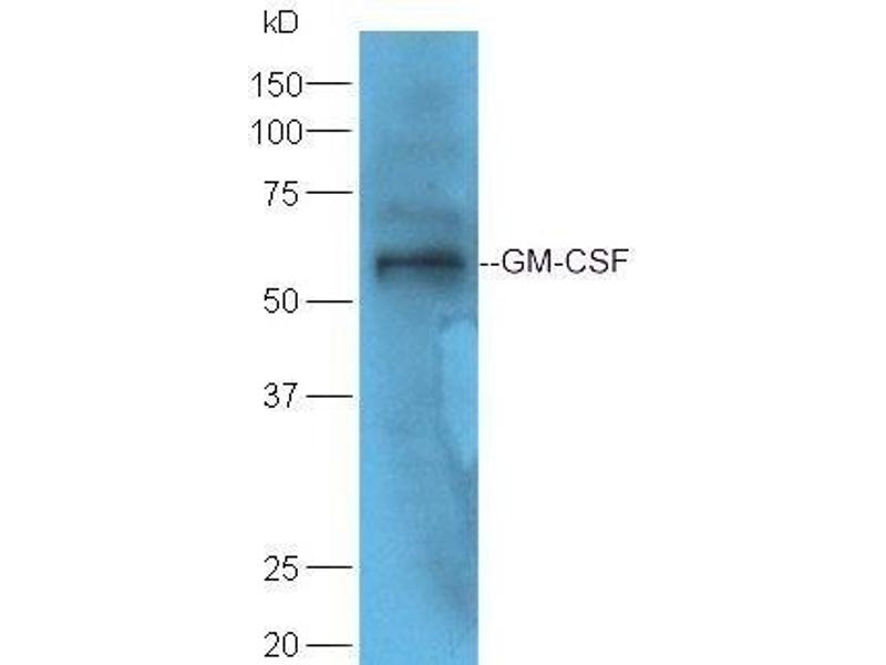 Western Blotting (WB) image for anti-CSF2 antibody (Colony Stimulating Factor 2 (Granulocyte-Macrophage)) (AA 80-130) (ABIN704156)
