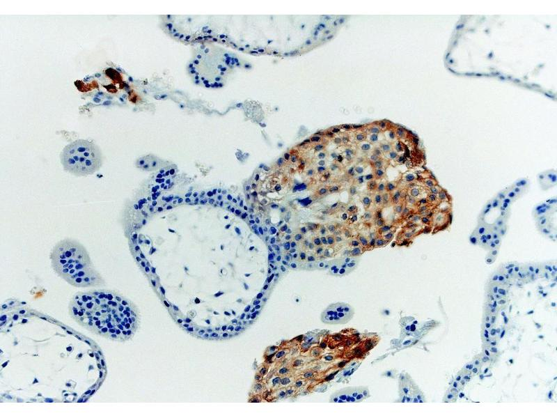Immunohistochemistry (IHC) image for anti-HLA Class I Histocompatibility Antigen, alpha Chain G (HLAG) (Heavy Chain) antibody (ABIN94366)