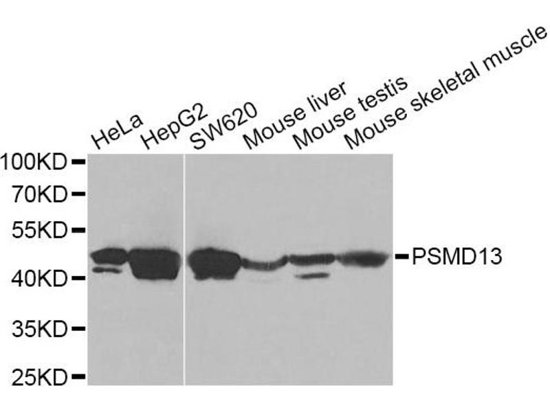 Image no. 2 for anti-Proteasome (Prosome, Macropain) 26S Subunit, Non-ATPase, 13 (PSMD13) antibody (ABIN6567507)