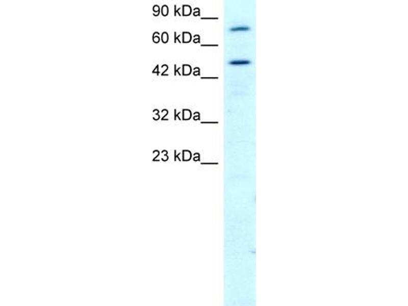 Western Blotting (WB) image for anti-Regulator of G-Protein Signaling 9 (RGS) (N-Term) antibody (ABIN2792222)