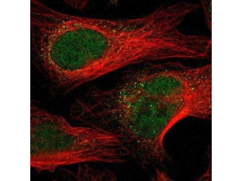 Immunofluorescence (IF) image for anti-MAPKAP Kinase 5 antibody (Mitogen-Activated Protein Kinase-Activated Protein Kinase 5) (ABIN4347179)