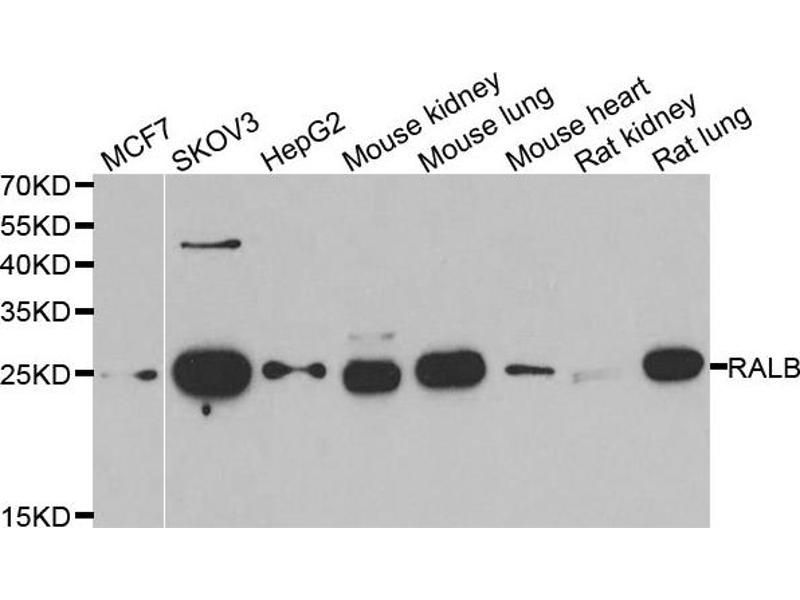 Western Blotting (WB) image for anti-V-Ral Simian Leukemia Viral Oncogene Homolog B (Ras Related, GTP Binding Protein) (Ralb) antibody (ABIN2564866)