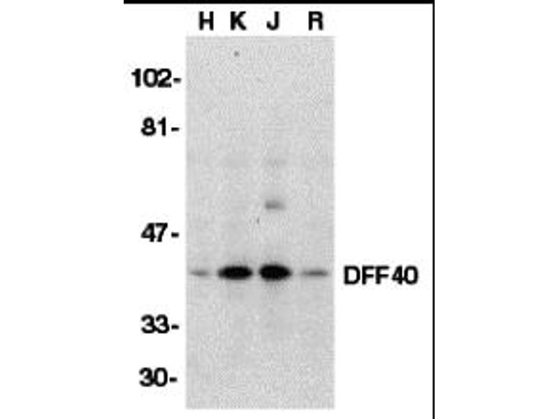 Western Blotting (WB) image for anti-DNA Fragmentation Factor, 40kDa, beta Polypeptide (Caspase-Activated DNase) (DFFB) (Middle Region) antibody (ABIN1030918)