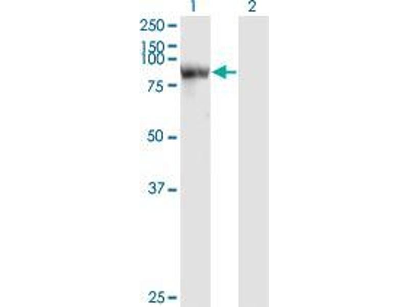 Western Blotting (WB) image for anti-Signal Transducer and Activator of Transcription 4 (STAT4) (AA 1-749) antibody (ABIN393475)