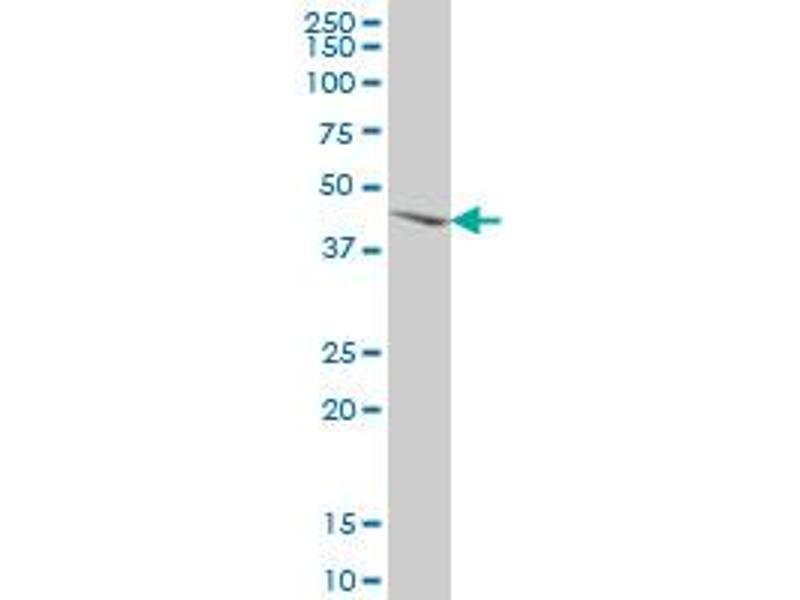 Western Blotting (WB) image for anti-MAP Kinase Interacting serine/threonine Kinase 2 (MKNK2) (AA 1-158), (full length) antibody (ABIN516166)