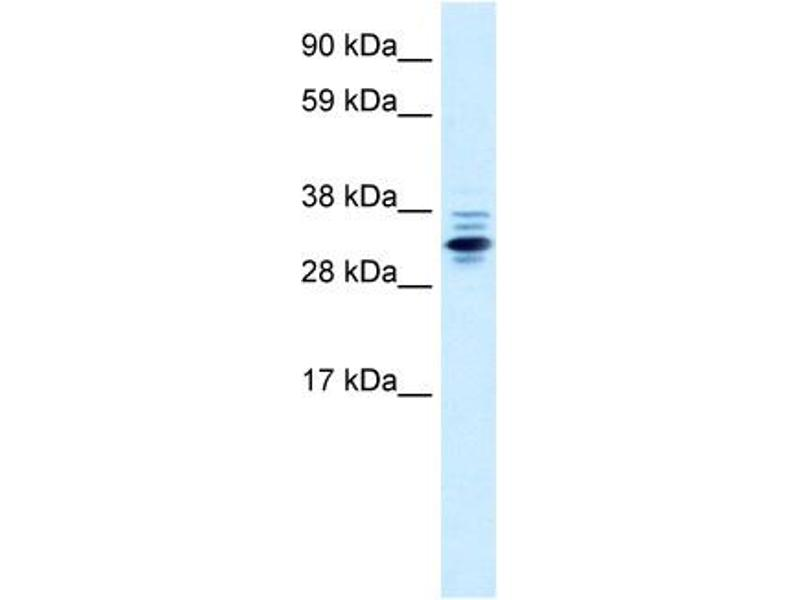 Western Blotting (WB) image for anti-Zinc Finger Protein 654 (ZNF654) (Middle Region) antibody (ABIN182748)
