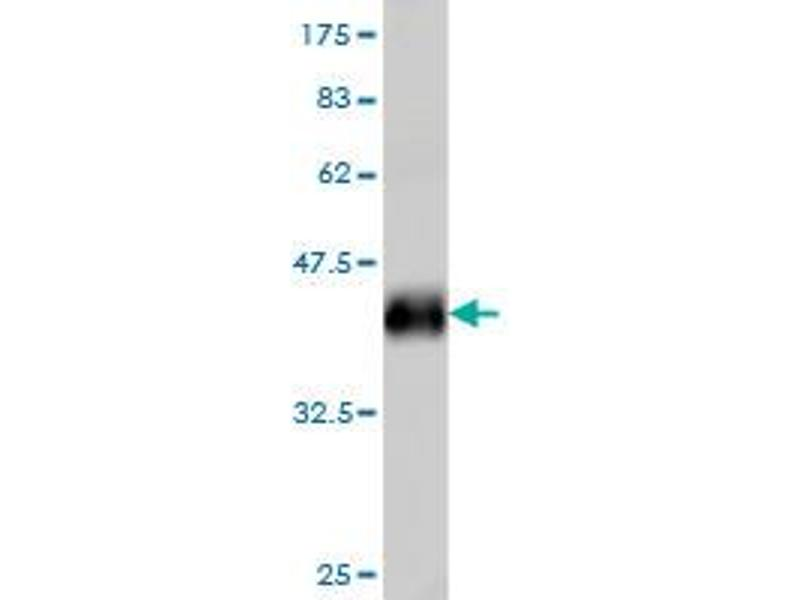 Image no. 2 for anti-Interferon Regulatory Factor 2 (IRF2) (AA 216-315) antibody (ABIN561522)