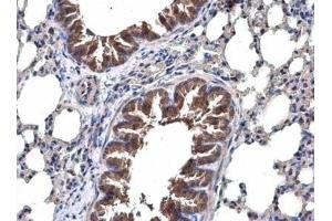 Immunohistochemistry (Paraffin-embedded Sections) (IHC (p)) image for anti-TRAF6 antibody (TNF Receptor-Associated Factor 6) (Center) (ABIN443234)