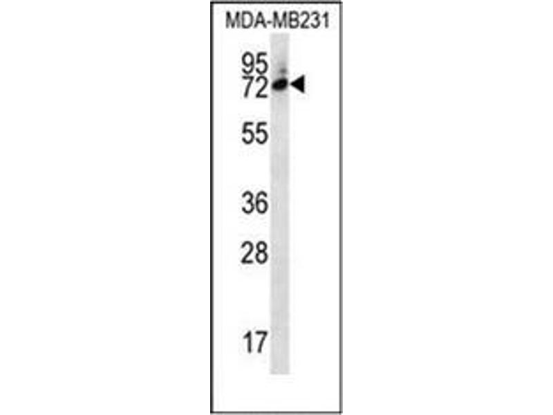 Western Blotting (WB) image for anti-Six5 (AA 264-294), (Middle Region) antibody (ABIN954812)
