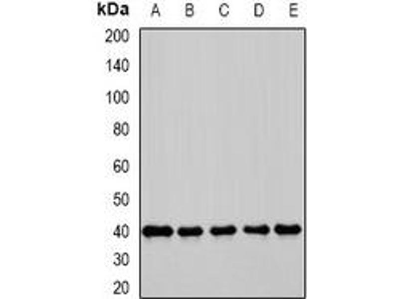 Western Blotting (WB) image for anti-MLST8 Antikörper (MTOR Associated Protein, LST8 Homolog (S. Cerevisiae)) (ABIN3198083)