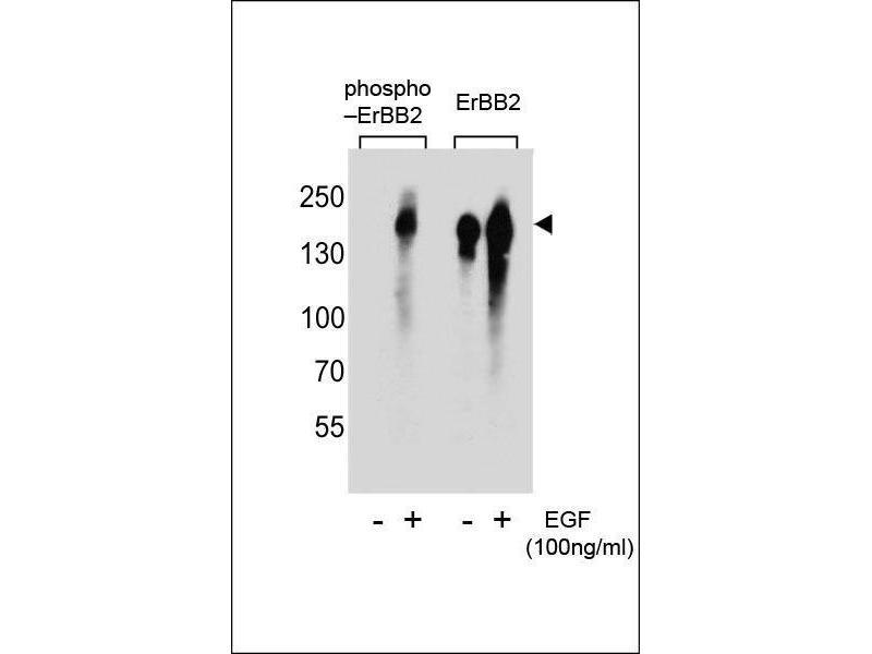 Western Blotting (WB) image for anti-V-Erb-B2 erythroblastic Leukemia Viral Oncogene Homolog 2, Neuro/glioblastoma Derived Oncogene Homolog (Avian) (ERBB2) (pTyr1005) antibody (ABIN1881312)