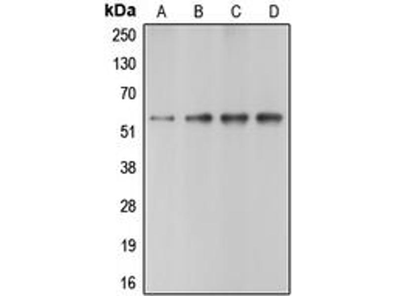Western Blotting (WB) image for anti-Caspase 10, Apoptosis-Related Cysteine Peptidase (CASP10) (C-Term) antibody (ABIN2704575)