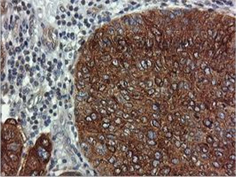image for anti-Farnesyl-Diphosphate Farnesyltransferase 1 (FDFT1) antibody (ABIN1498243)