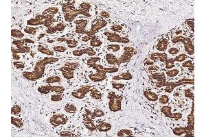 Image no. 3 for anti-V-Set Domain Containing T Cell Activation Inhibitor 1 (VTCN1) (AA 29-258) antibody (ABIN2682762)