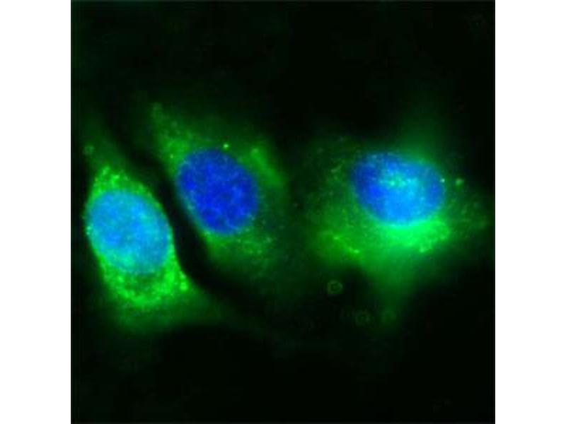 image for anti-CD36 Molecule (thrombospondin Receptor) (CD36) (Extracellular Domain) antibody (ABIN350201)